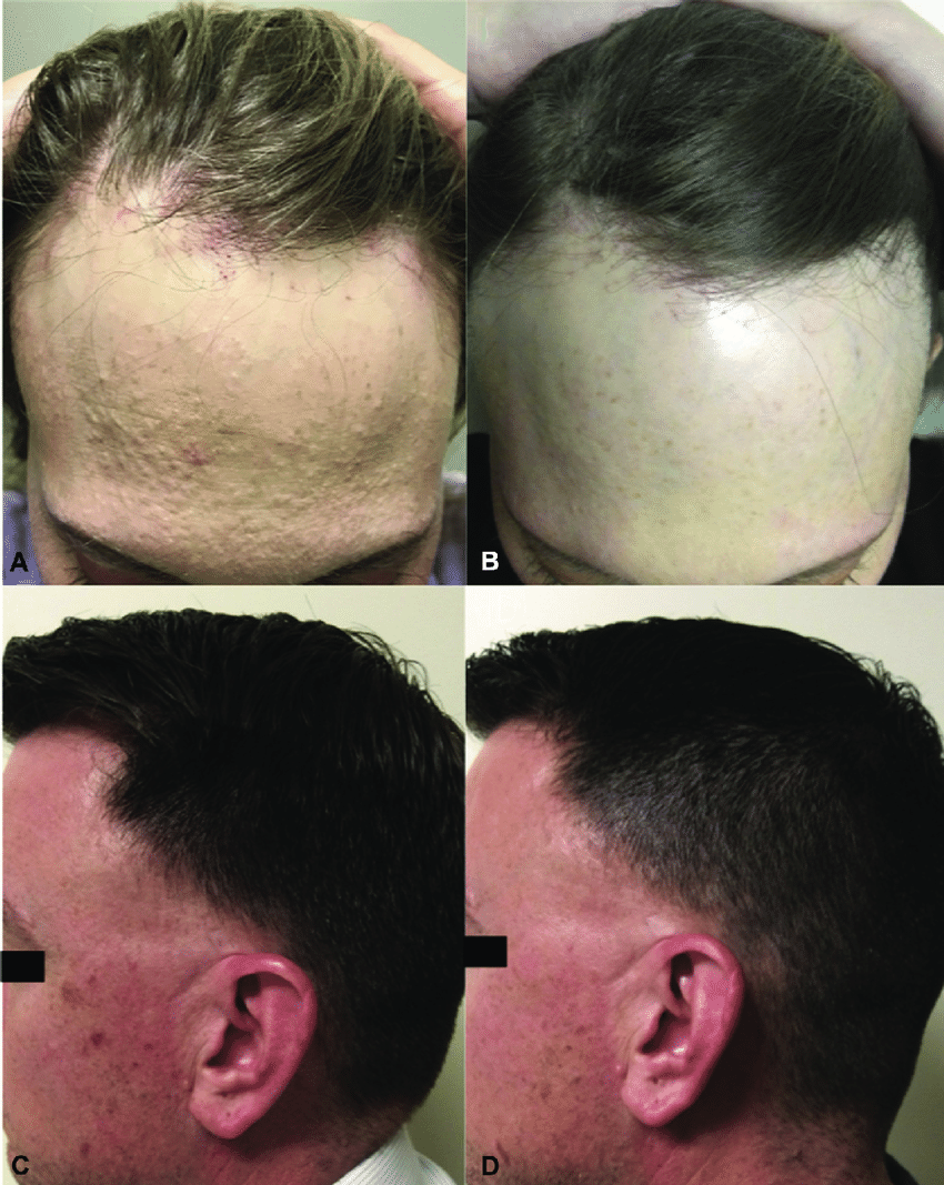 A and B Facial papules in a female patient with frontal ...