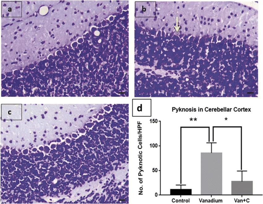 Cresyl violet stain in the cerebellar cortex. arrow indicates pyknotic... | Download Scientific Diagram