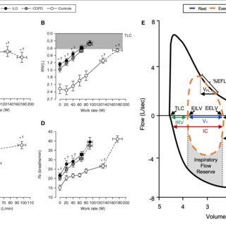 Representative changes in (A) inspiratory capacity (B ...