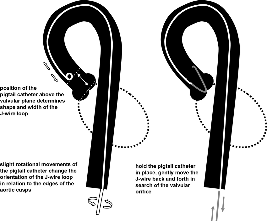Pigtail Wire Diagram / Q A To Pigtail Or Not To Pigtail