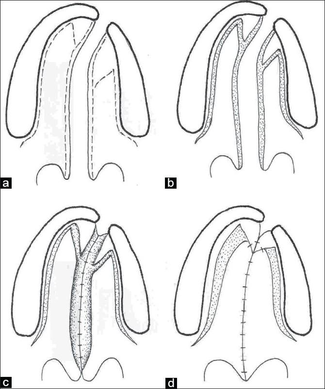 Line diagram showing the Veau-Wardill-Kilner technique of