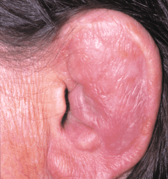 a photograph of the pinna showing auricular chondritis with the earlobe spared of any inflammation [ 723 x 1100 Pixel ]