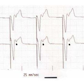 (PDF) Pacemaker Syndrome. Case report. Síndrome de