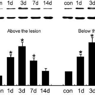 Western blot analysis of GFAP expression in the spinal
