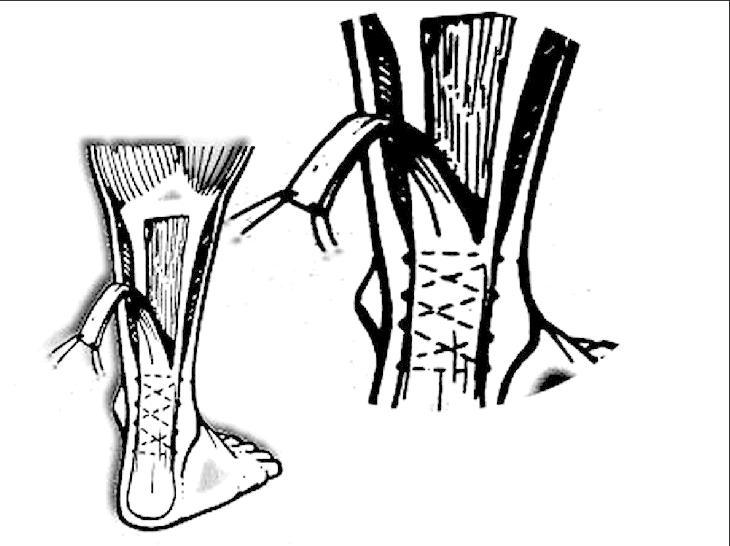Line diagram showing turn-down of gastrosoleus fascia