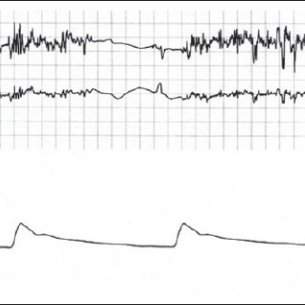 (PDF) Electromagnetic interference in a cardiac pacemaker