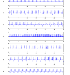 illustration of normal and arrhythmia ecg signals used in this study signal durations are 30 [ 850 x 1052 Pixel ]