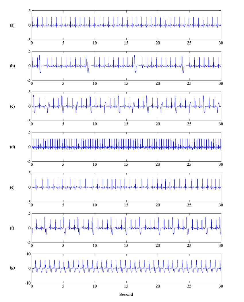 medium resolution of illustration of normal and arrhythmia ecg signals used in this study signal durations are 30