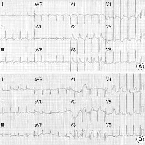 (A) Initial ECG at emergency room showed left ventricular