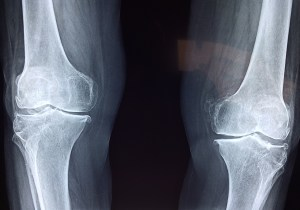Scientists Uncover Mechanism of Joint Cartilage Formation