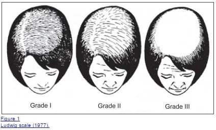 hair growth with minoxidil