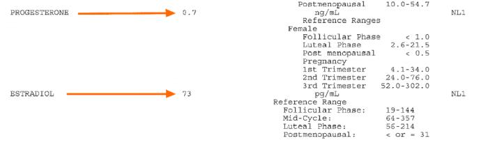 Low progesterone symptoms labs