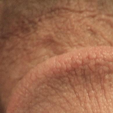 Cómo incrementar la piel interna, fácil y rápido