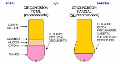 Estilos de circuncisión - Total y parcial