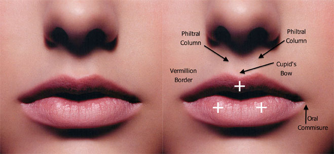Lip injection Austin  Lip Fillers for a Beautiful Smile