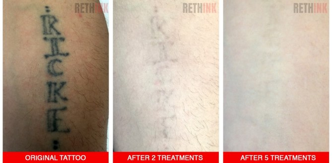 lower arm tattoo removal
