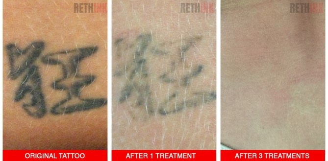 lower back tattoo removal