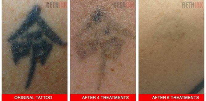 shoulder tattoo removal