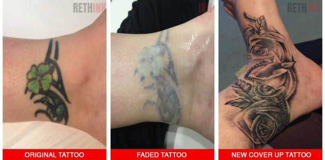 ankle tattoo removal and coverup