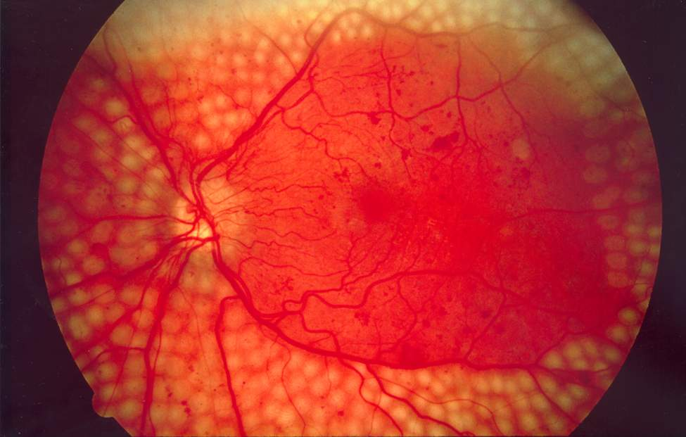 Fundus photo showing scatter laser surgery for diabetic retinopathy