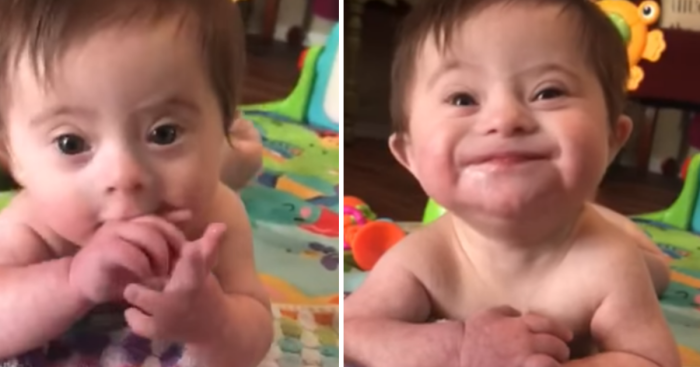 Adopted Baby Girl With Down Syndrome Is Stealing The Hearts Of Everyone With New Video