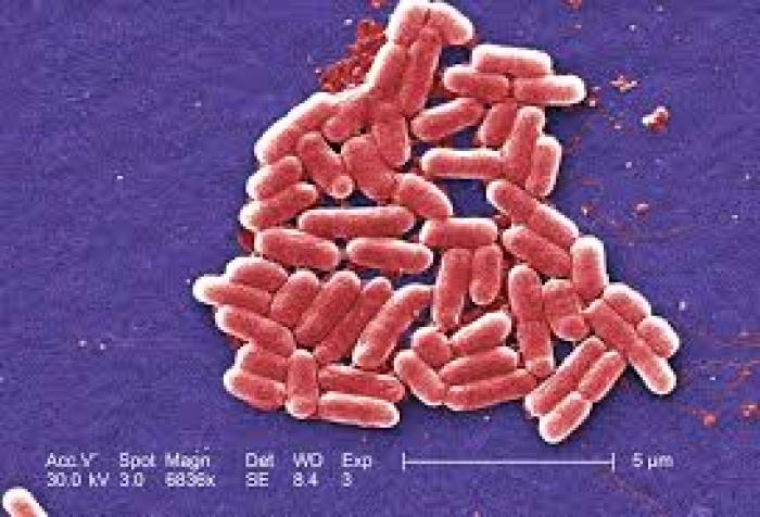 Over 40,0000 Lbs. Of Ground Beef Recalled Due To E. Coli Contamination