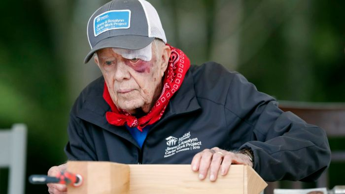 jimmy carter builds homes with black eye