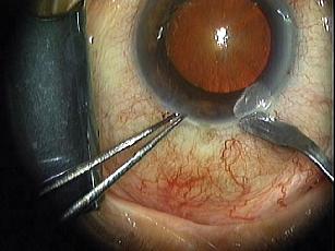 Heading Off Acute Postop Endophthalmitis