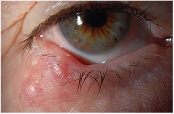 Eyelid Lesions Diagnosis And Treatment