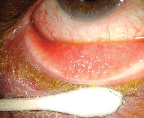 An Atlas Of Conjunctival And Scleral Anomalies