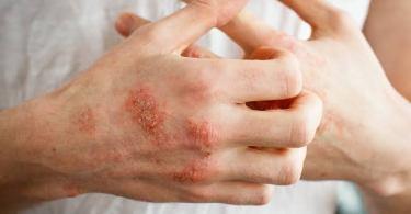 Best steroid cream for eczema