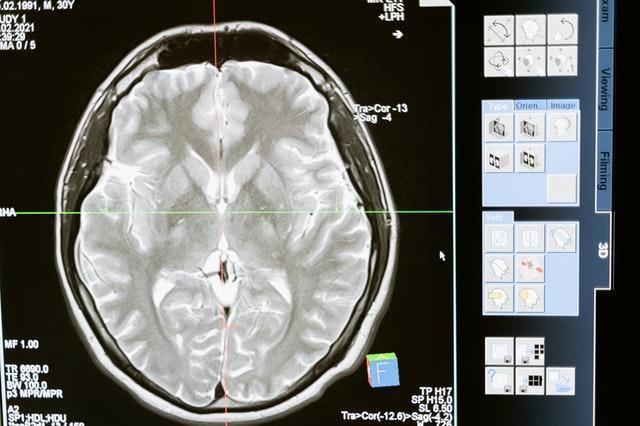 Consumo de carne fue esencial para que humanos desarrollaran el cerebro