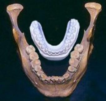 Na gruta de Lovelock, Nevada, encontraram-se em 1911 diversos restos humanos mumificados de cabelo ruivo. A uns 70Km foram encontrados mais uns 60 corpos mumificados. Estes restos humanos mediam cerca de 2,5m e a sua idade é de mais de 4.000 anos. Na imagem: comparação de uma mandibula encontrada com a mandibula de um homem actual.