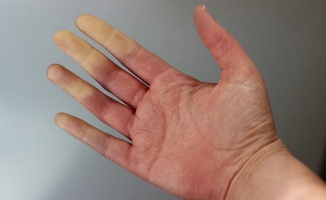 Las Cicatrices Que Deja La Esclerodermia Revista Neo
