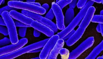 proteinas infecciones virales