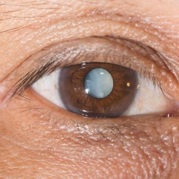 lente intraocular cataratas