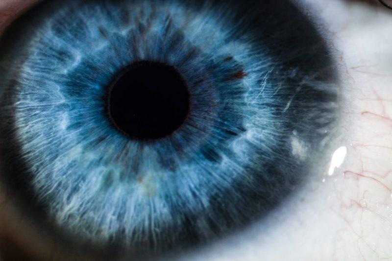 retina y alzheimer