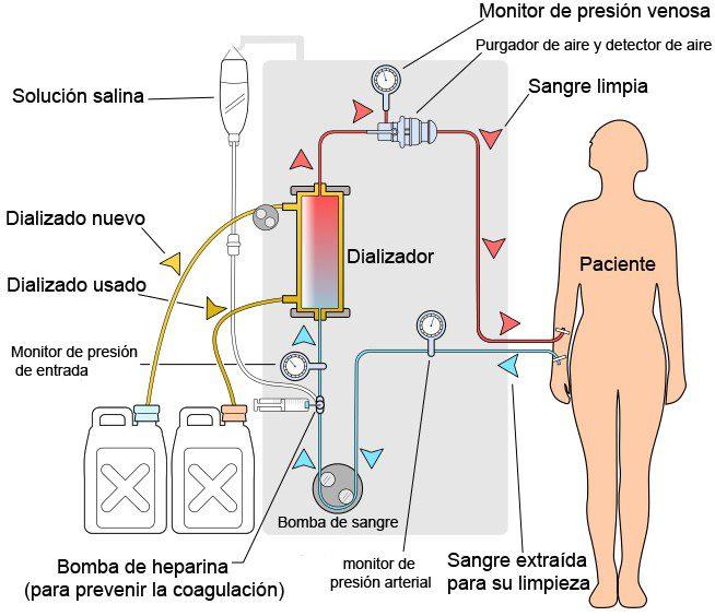 Acido citrico y dialisis