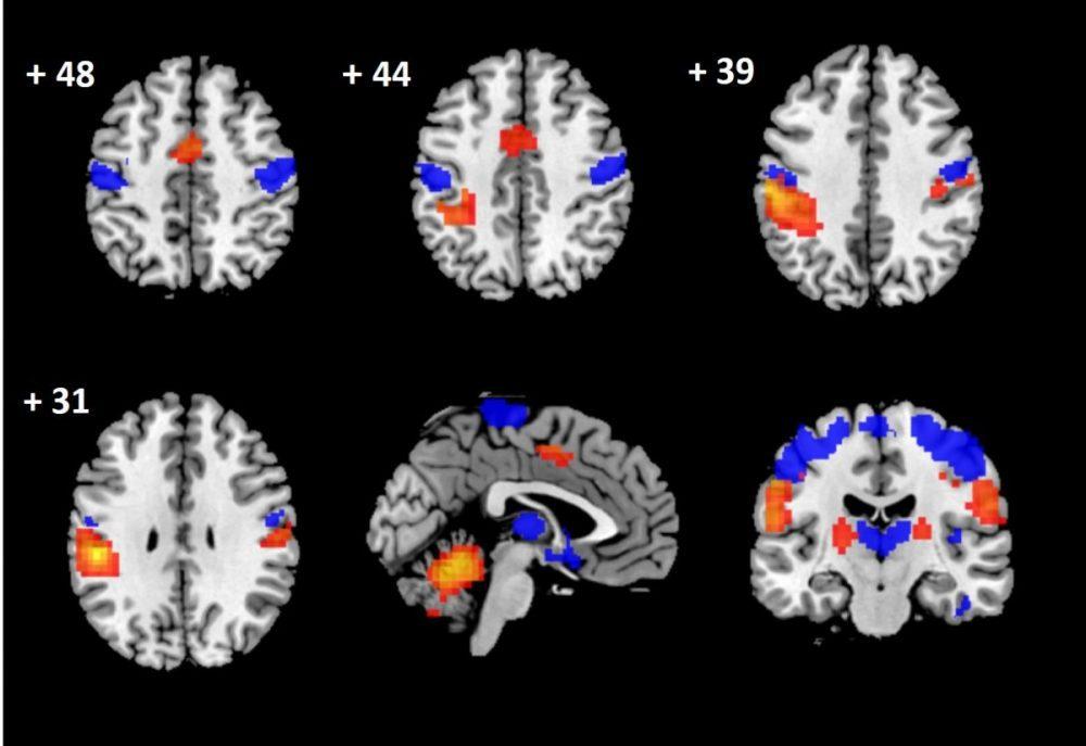 detectan daño cerebral en pacientes con hernias cervicales mediante técnicas de neuroimagen e inteligencia artificial