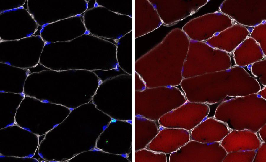 Investigación de la distrofia muscular