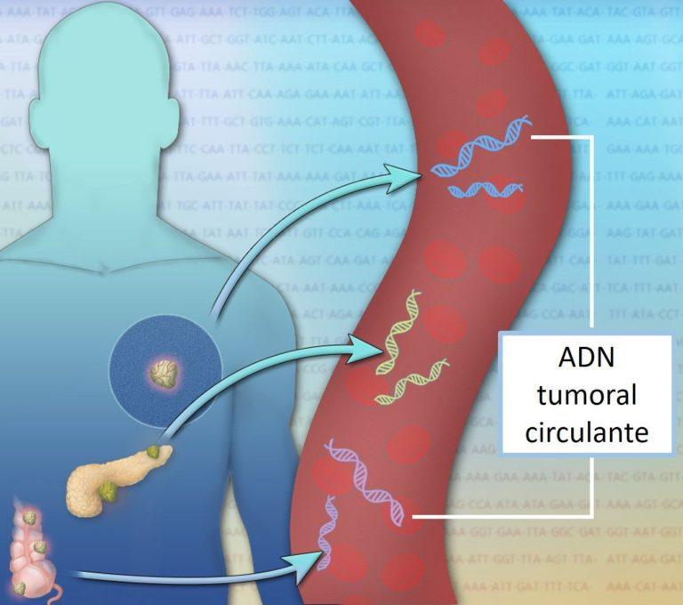 análisis de sangre que detecta más de 50 tipos de cáncer
