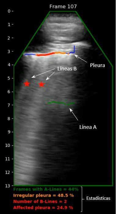 Ecógrafo pulmonar para la detección y seguimiento de la Covid-19