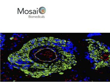 mosaic biomedicals,unaspin-offdel vhio