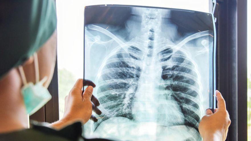 Curable cáncer de pulmón