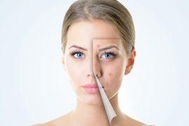 "wyss, identificar ""patitos feos"" para contraer cáncer de piel antes"