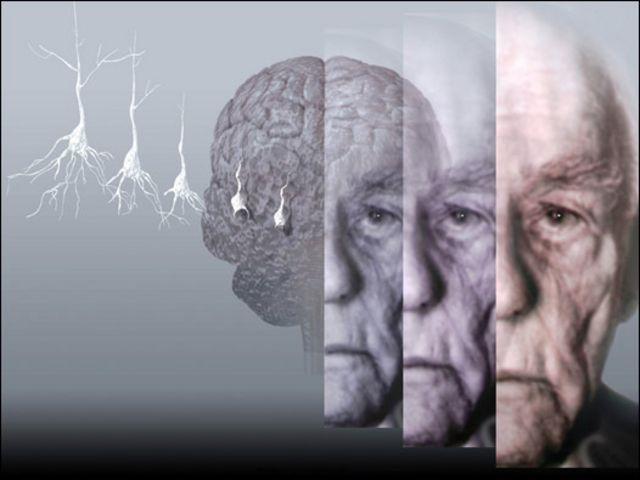 Un fármaco revierte los síntomas del alzhéimer