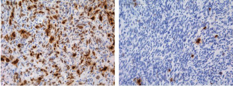 cnio, mejorar la supervivencia de los pacientes con tumores cerebrales agresivos