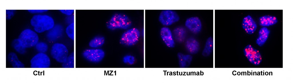 trastuzumab y MZ1