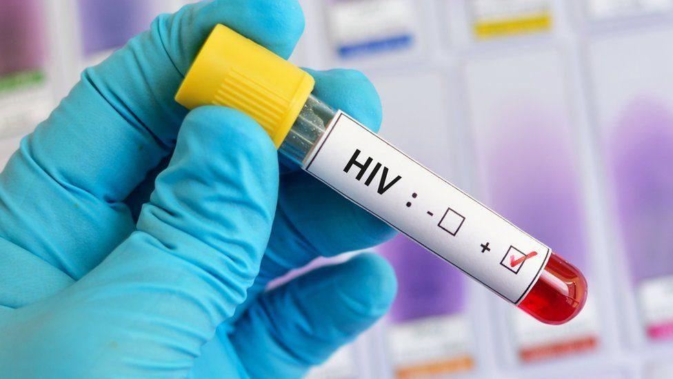 La vacuna contra el VIH da un gran paso6
