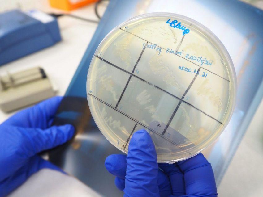 En busca de nuevas dianas para tratar el cancer1